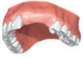 Novi implanti za lep in prijeten nasmeh