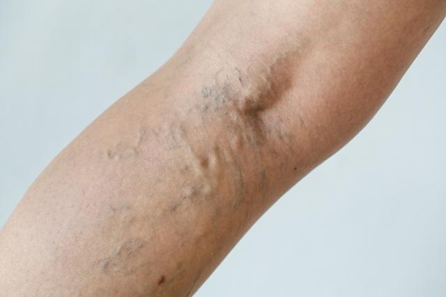 Nič več skrivanja nog – rešite se razširjenih ven hitro in brez operacije