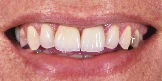Zobne luske – ena od najboljših metod pri doseganju lepšega nasmeha